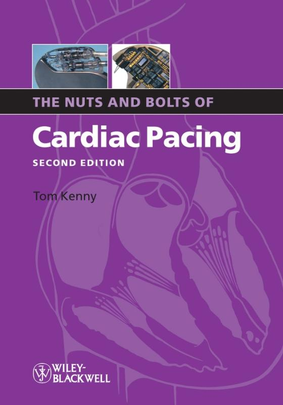 9781405184038-The-Nuts-And-Bolts-Of-Cardiac-Pacing