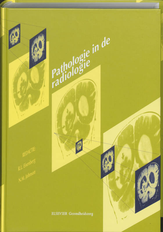 9789035227637-Pathologie-in-de-Radiologie